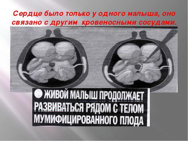 Сердце было только у одного малыша, оно связано с другим кровеносными сосудами.