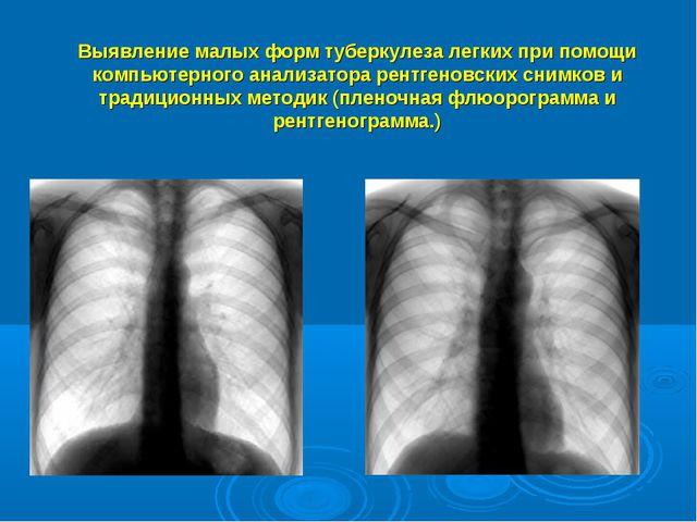 Выявление малых форм туберкулеза легких при помощи компьютерного анализатора...