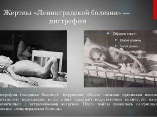 Жертвы «Ленинградской болезни»— дистрофии … Дистрофия (голодная болезнь)– на