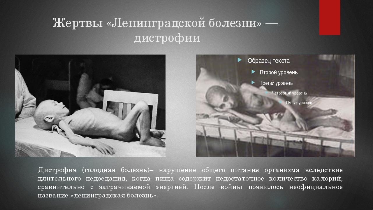 Жертвы «Ленинградской болезни»— дистрофии … Дистрофия (голодная болезнь)– на...