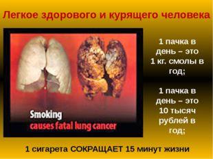 Легкое здорового и курящего человека 1 сигарета СОКРАЩАЕТ 15 минут жизни 1 па