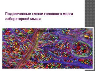 Подсвеченные клетки головного мозга лабораторной мыши