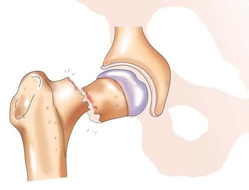 Часты случай-патологический перелом шейки бедра
