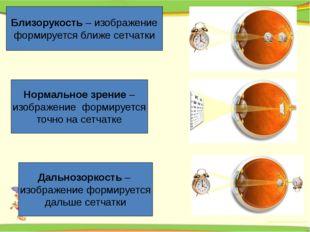 Близорукость – изображение формируется ближе сетчатки Нормальное зрение – изо