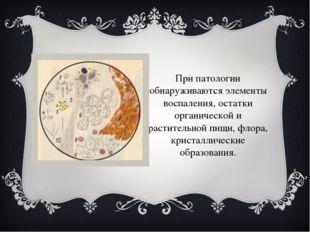 При патологии обнаруживаются элементы воспаления, остатки органической и раст