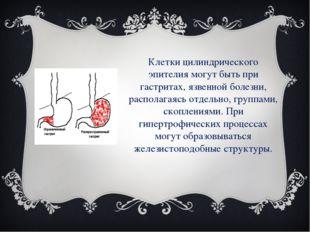 Клетки цилиндрического эпителия могут быть при гастритах, язвенной болезни, р
