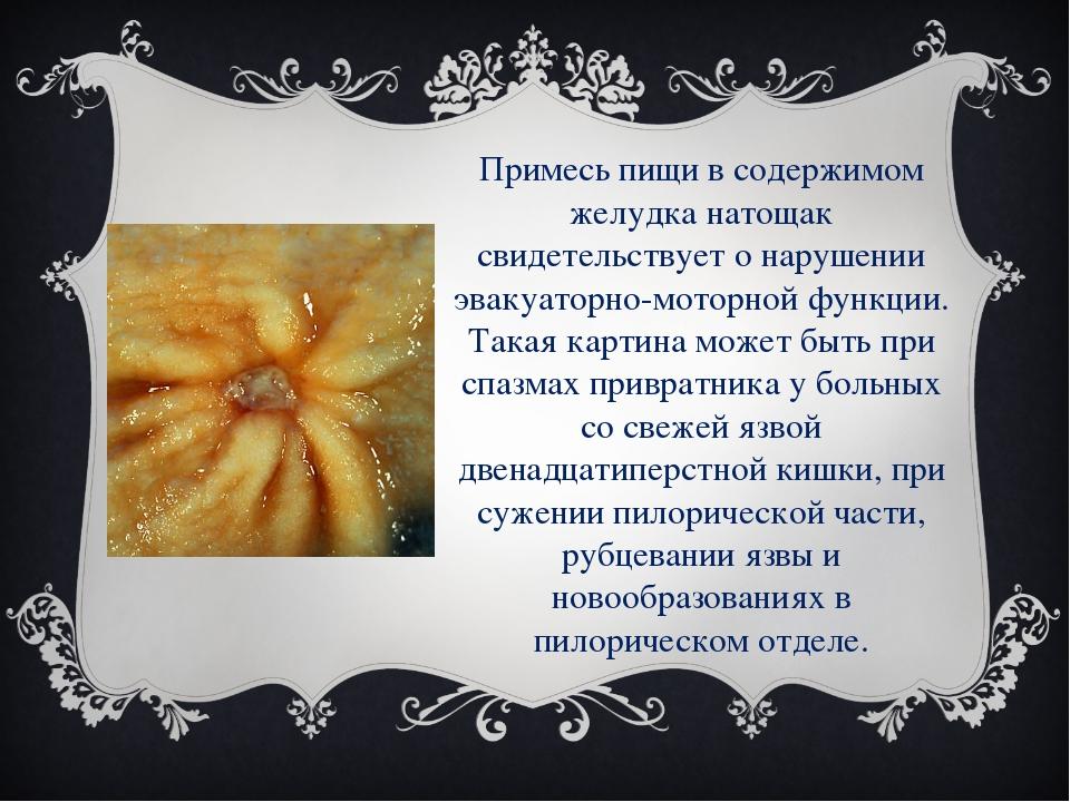 Примесь пищи в содержимом желудка натощак свидетельствует о нарушении эвакуат...