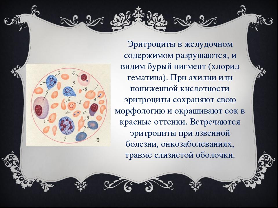 Эритроциты в желудочном содержимом разрушаются, и видим бурый пигмент (хлорид...