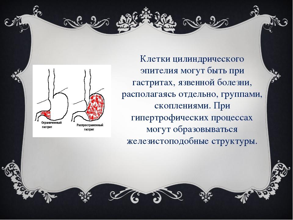 Клетки цилиндрического эпителия могут быть при гастритах, язвенной болезни, р...