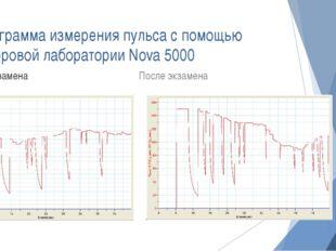 Диаграмма измерения пульса с помощью цифровой лаборатории Nova 5000 До экзаме