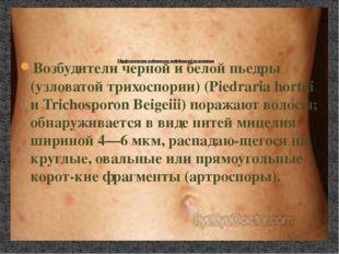 Возбудители черной и белой пьедры (узловатой трихоспории) (Piedraria hortai и