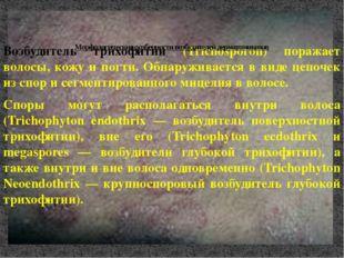 Возбудитель трихофитии (Trichosporon) поражает волосы, кожу и ногти. Обнаружи