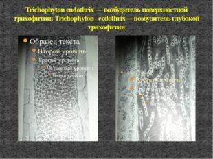 Trichophyton endothrix — возбудитель поверхностной трихофитии; Trichophyton e