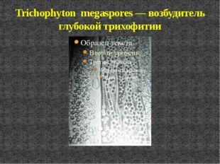Trichophyton megaspores — возбудитель глубокой трихофитии