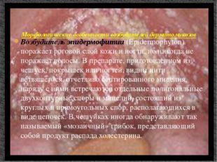 Возбудитель эпидермофитии (Epidermophyton) поражает роговой слой кожи и ногти