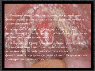 По Романовскому грибки окрашиваются в розовато-фиолетовый цвет, включения – в