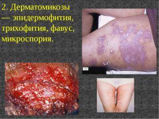 2. Дерматомикозы — эпидермофития, трихофития, фавус, микроспория.
