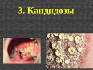 3. Кандидозы
