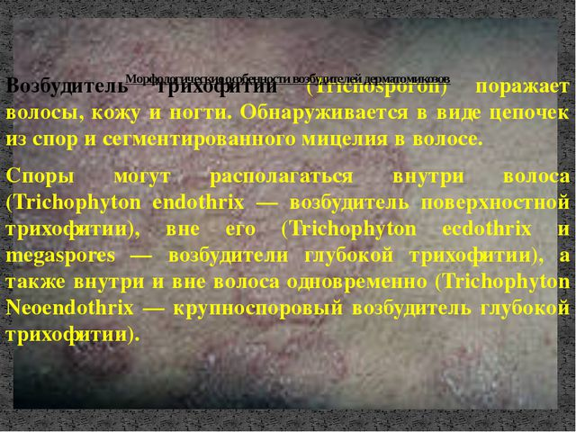 Возбудитель трихофитии (Trichosporon) поражает волосы, кожу и ногти. Обнаружи...