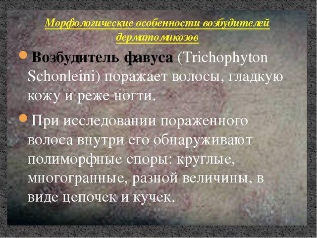 Возбудитель фавуса (Trichophyton Schonleini) поражает волосы, гладкую кожу и...