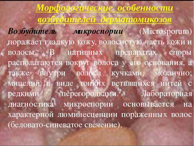 Возбудитель микроспории (Microsporum) поражает гладкую кожу, волосистую часть...