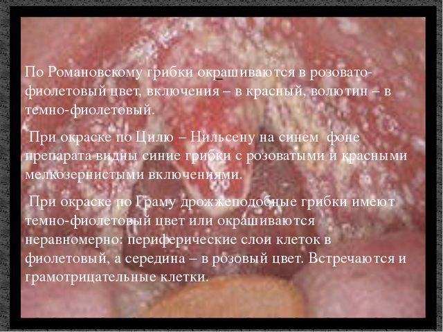 По Романовскому грибки окрашиваются в розовато-фиолетовый цвет, включения – в...