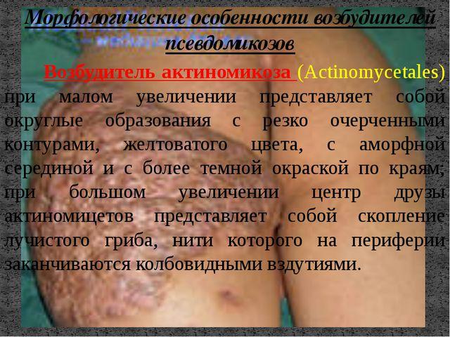 Возбудитель актиномикоза (Actinomycetales) при малом увеличении представляет...