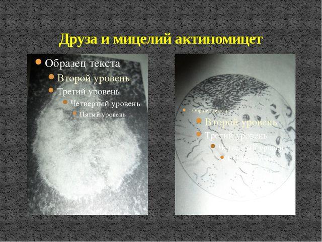 Друза и мицелий актиномицет