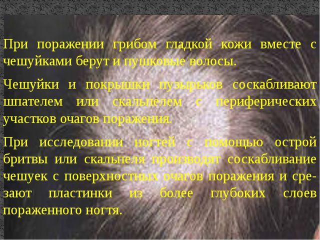 При поражении грибом гладкой кожи вместе с чешуйками берут и пушковые волосы....