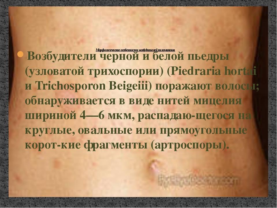 Возбудители черной и белой пьедры (узловатой трихоспории) (Piedraria hortai и...