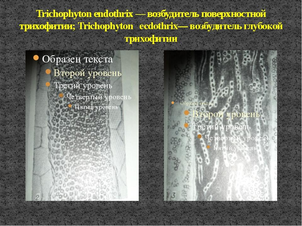 Trichophyton endothrix — возбудитель поверхностной трихофитии; Trichophyton e...
