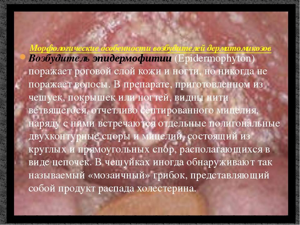 Возбудитель эпидермофитии (Epidermophyton) поражает роговой слой кожи и ногти...