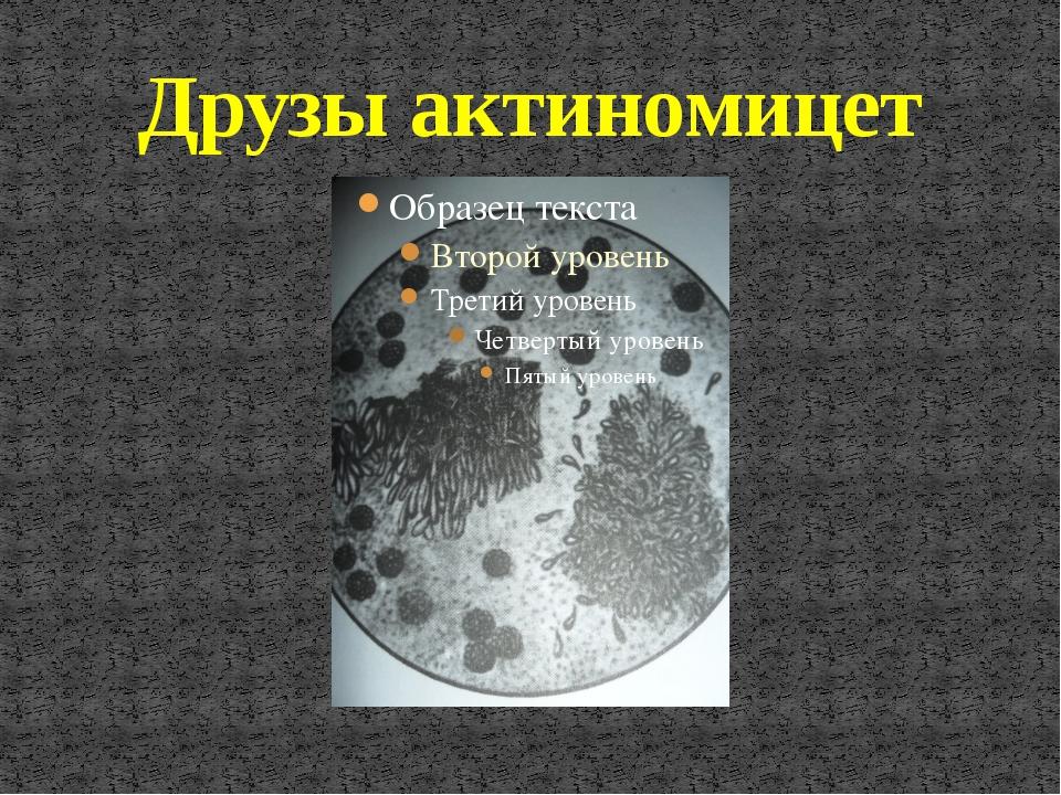 Друзы актиномицет