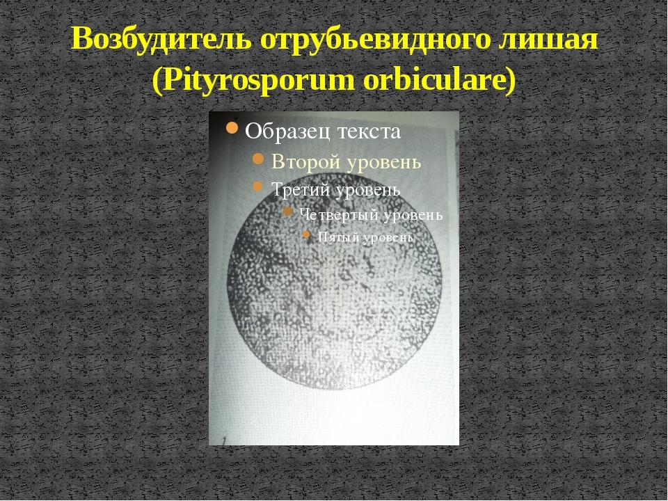 Возбудитель отрубьевидного лишая (Pityrosporum orbiculare)