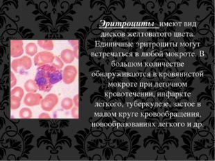 Эритроциты имеют вид дисков желтоватого цвета. Единичные эритроциты могут вст