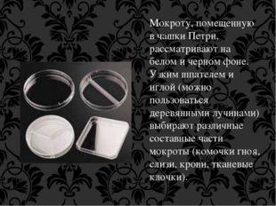 Мокроту, помещенную в чашки Петри, рассматривают на белом и черном фоне. Узки
