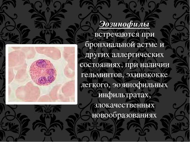 Эозинофилы встречаются при бронхиальной астме и других аллергических состояни...