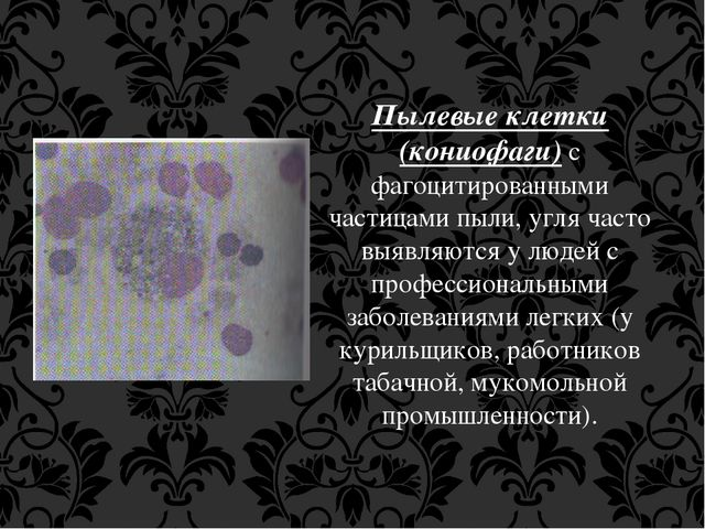 Пылевые клетки (кониофаги) с фагоцитированными частицами пыли, угля часто выя...