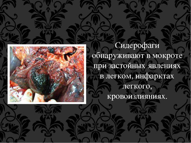 Сидерофаги обнаруживают в мокроте при застойных явлениях в легком, инфарктах...