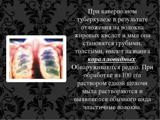 При кавернозном туберкулезе в результате отложения на волокна жировых кислот...