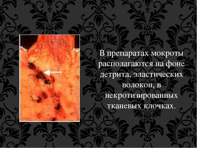 В препаратах мокроты располагаются на фоне детрита, эластических волокон, в н...