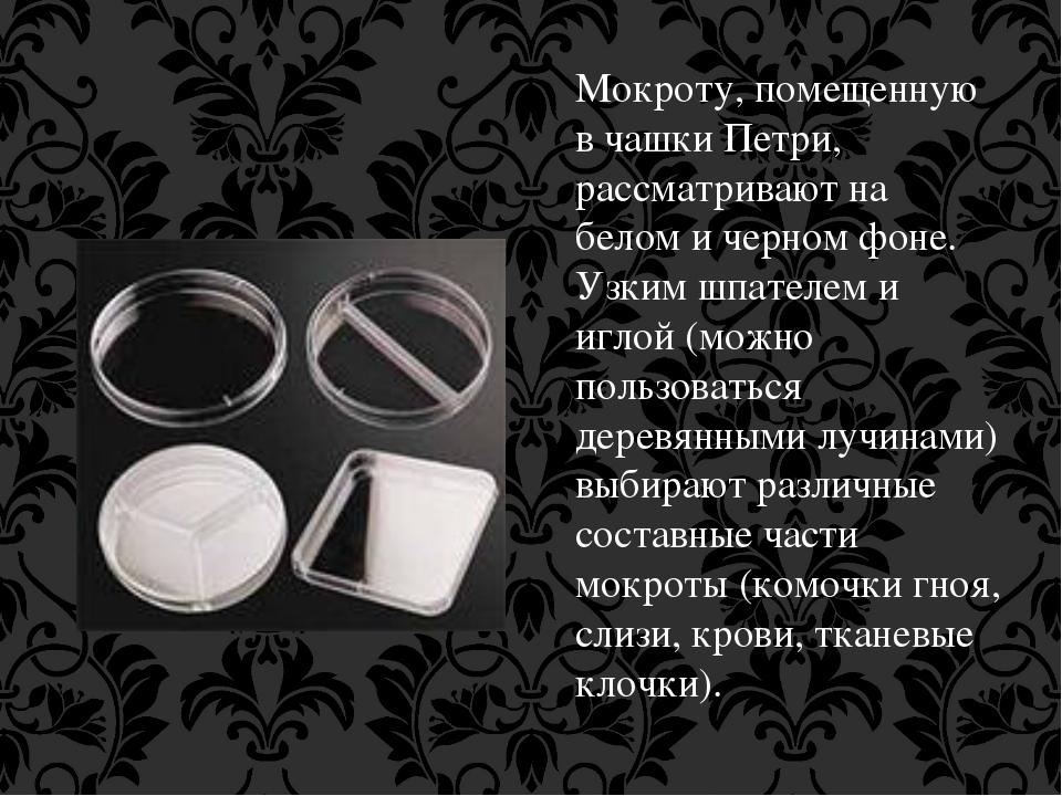 Мокроту, помещенную в чашки Петри, рассматривают на белом и черном фоне. Узки...