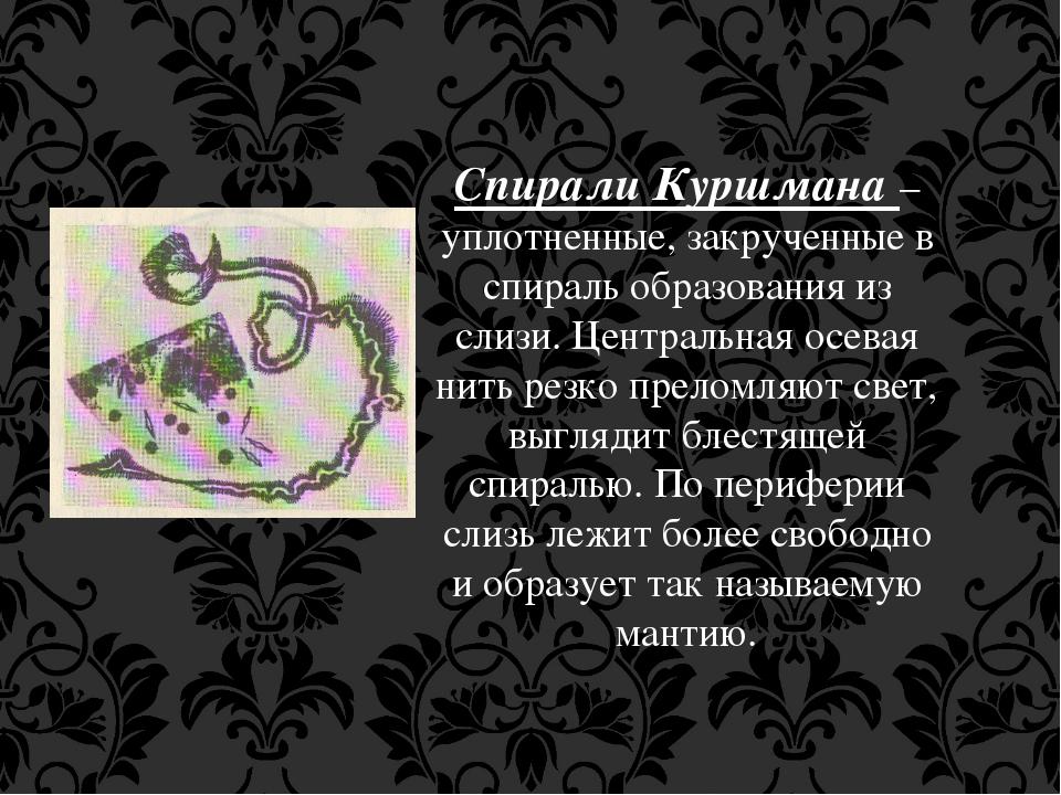 Спирали Куршмана – уплотненные, закрученные в спираль образования из слизи. Ц...