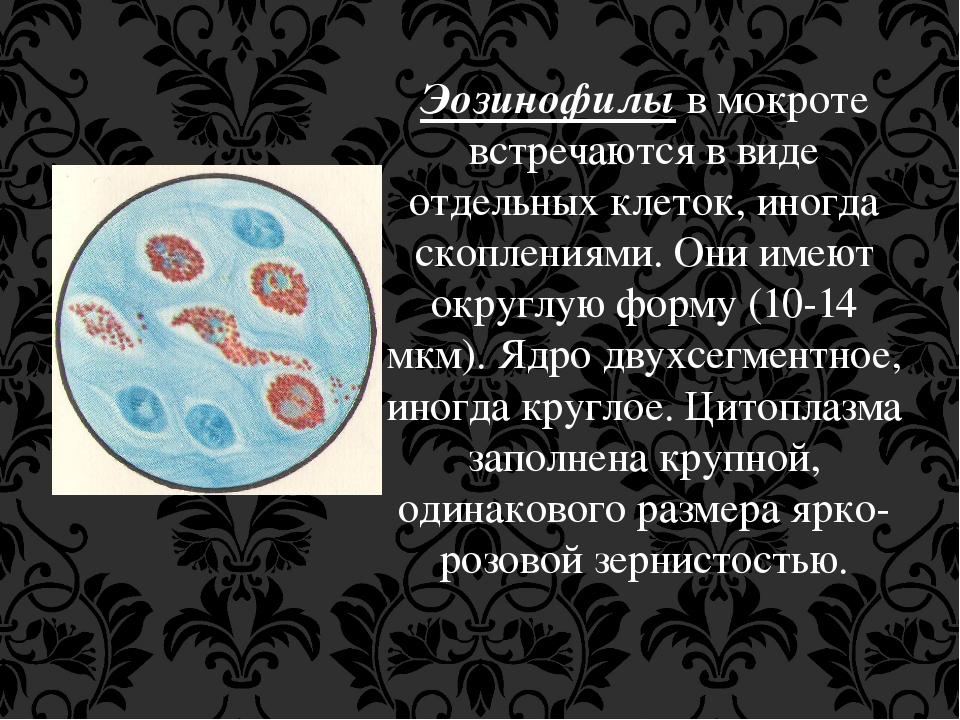 Эозинофилы в мокроте встречаются в виде отдельных клеток, иногда скоплениями....