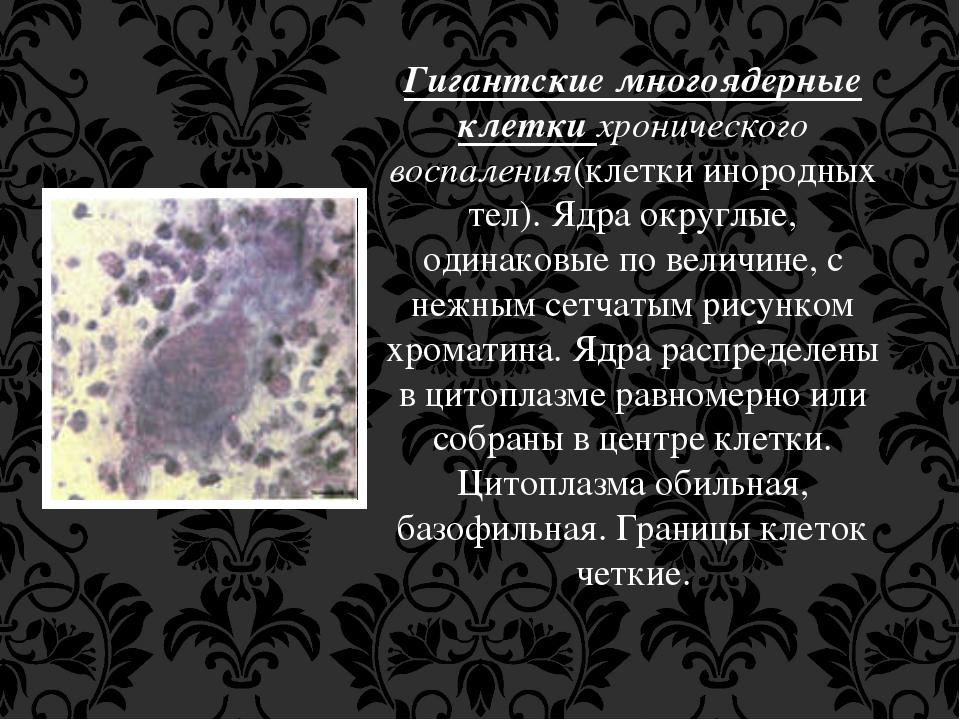 Гигантские многоядерные клетки хронического воспаления(клетки инородных тел)....