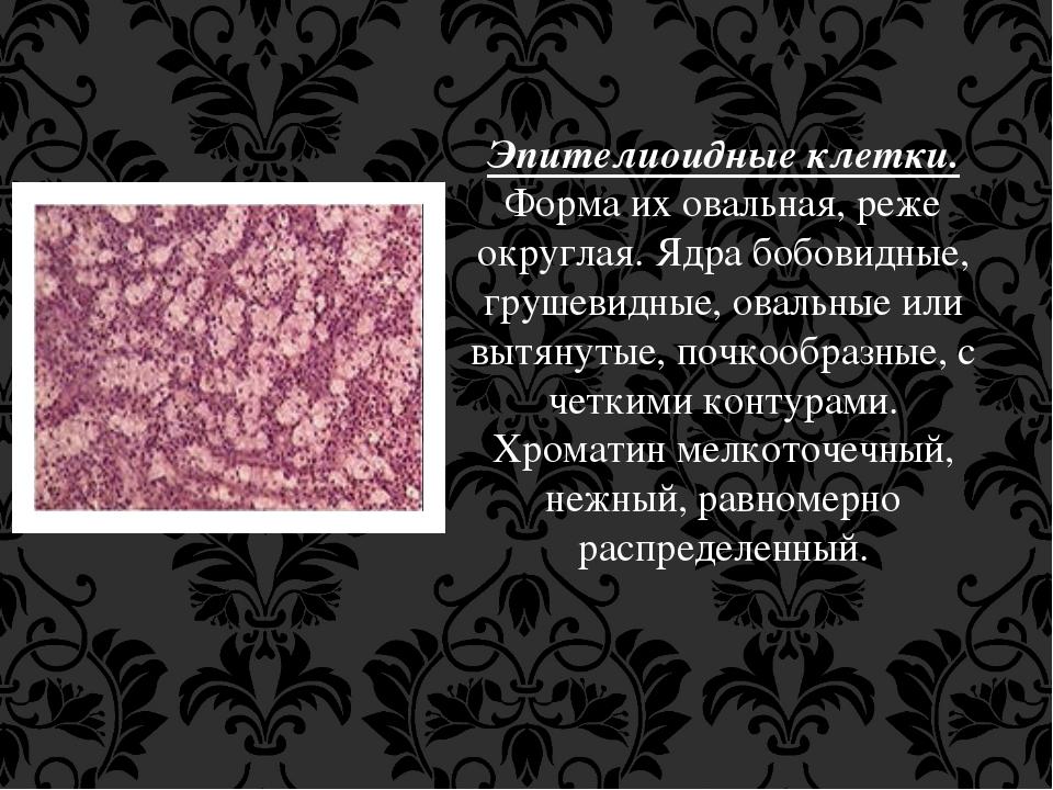 Эпителиоидные клетки. Форма их овальная, реже округлая. Ядра бобовидные, груш...