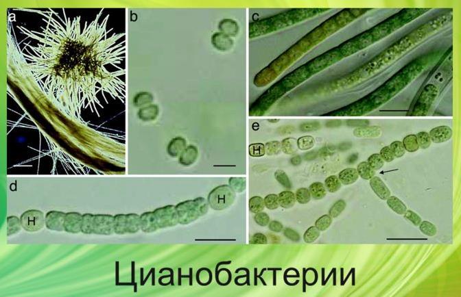 http://probakterii.ru/wp-content/uploads/2015/06/Cyanobacteria.jpg