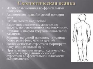 Изгиб позвоночника во фронтальной плоскости. Асимметрия правой и левой полови