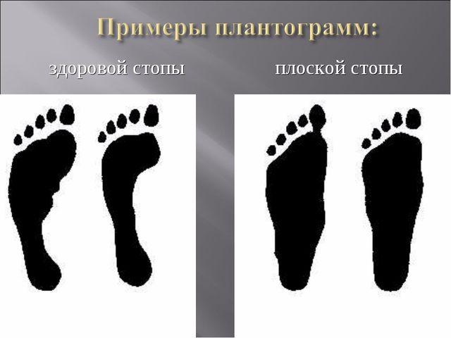 здоровой стопы плоской стопы