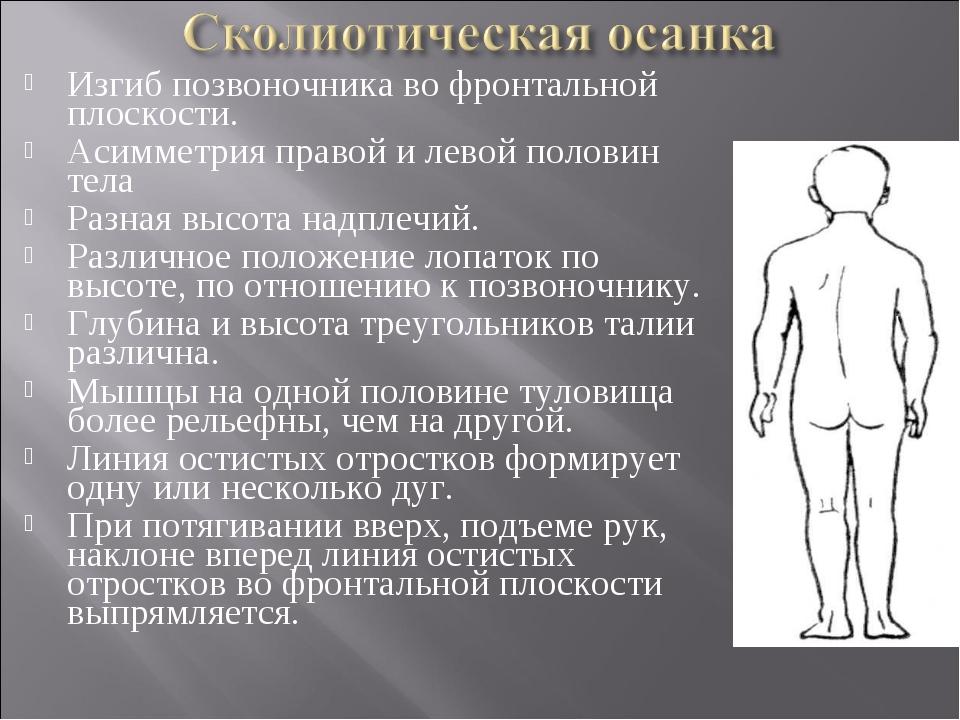 Изгиб позвоночника во фронтальной плоскости. Асимметрия правой и левой полови...